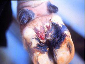 Erosão de talão